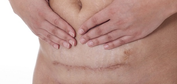 tratamentul bursitei sinovită a genunchiului care unguente de osteochondroză ajută mai bine