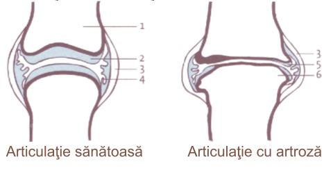Articulațiile rănesc vasele