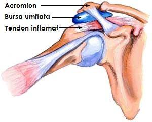 artroza consecințelor articulației umărului