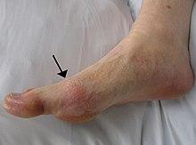 dureri de gleznă ce să facă metode de tratament pentru artroza piciorului