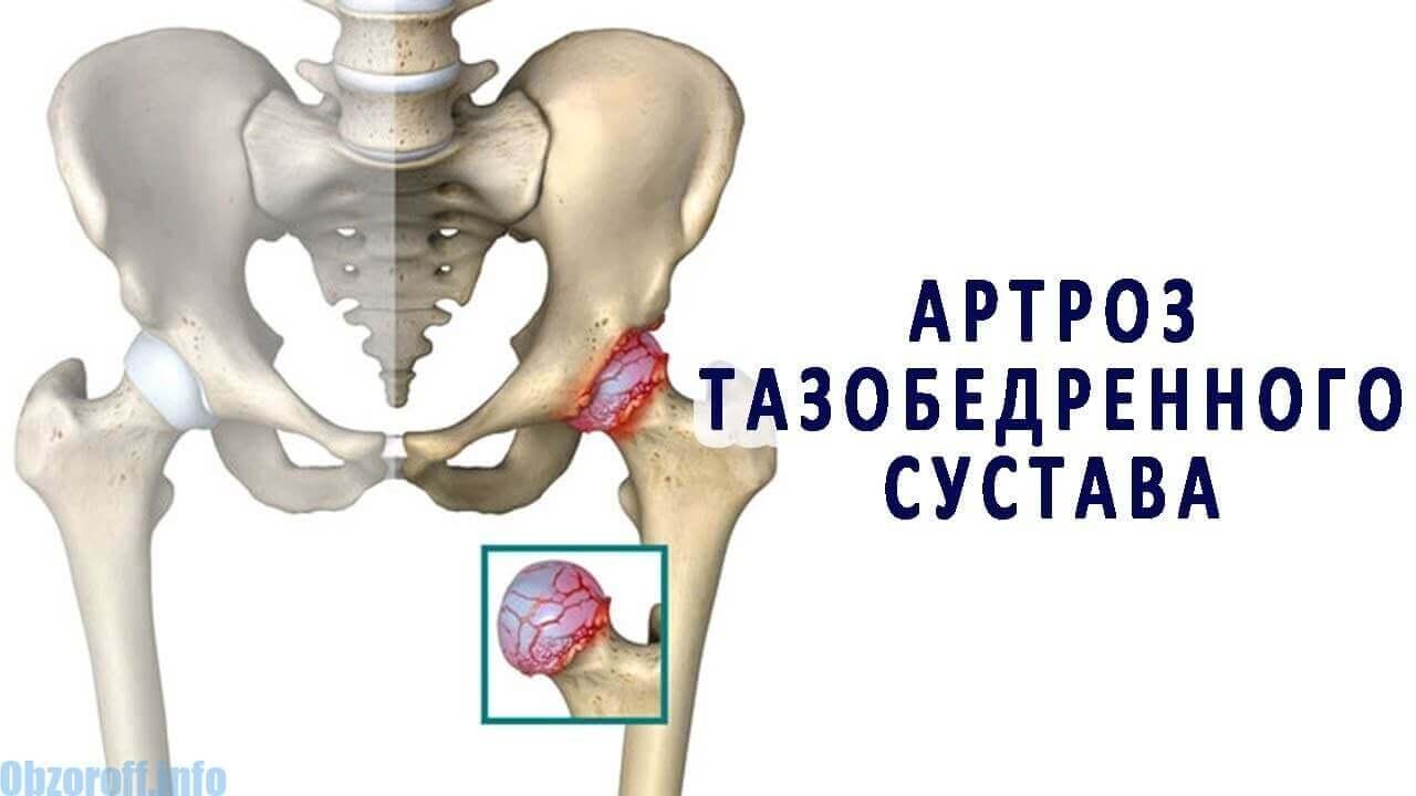 ce medicamente să luați cu artroza articulației șoldului