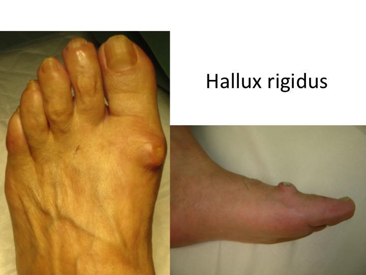 tratamentul artrozei piciorului provoacă
