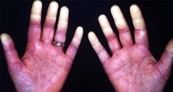 Sindromul durerii articulare a lui Raynaud