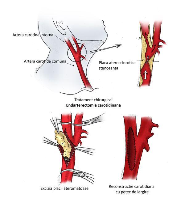 program de boală comună cum să consolidezi mușchii articulației genunchiului cu artroză