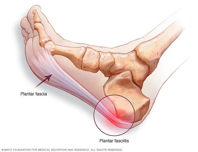 Durerile de calcai | CENTROKINETIC