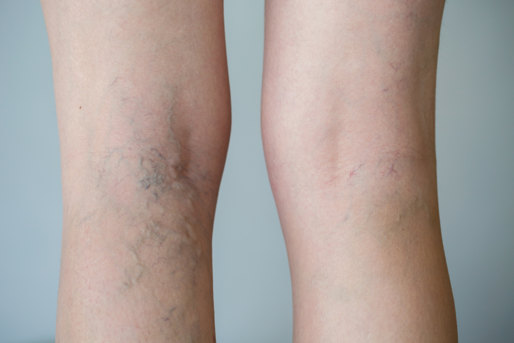 Pausacaffe: Dureri ale gleznei şi piciorului varice ce sunt