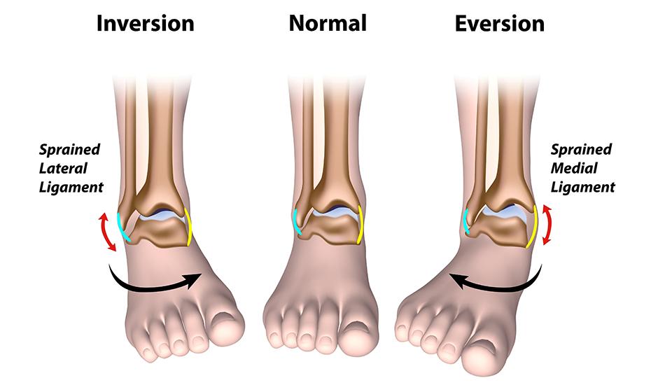 tratamentul entorselor articulare a gleznei menisc interior al articulației genunchiului