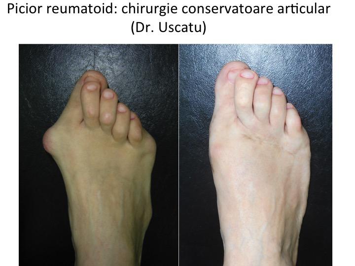 Artroza piciorului boli articulare pr