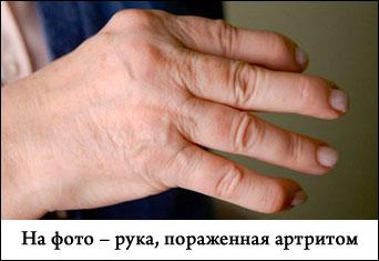 Лечение артрита кисти