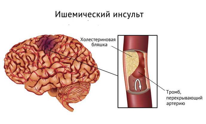 dureri articulare cu accident vascular cerebral ischemic tratamentul mixt al bolilor țesutului conjunctiv