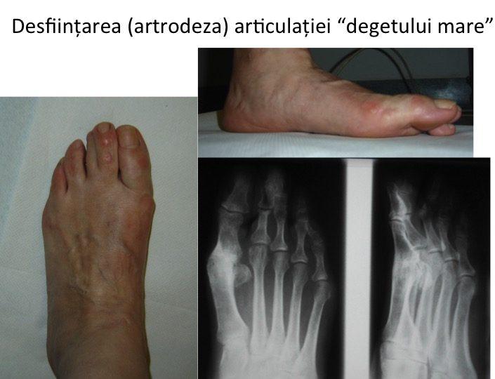 Artroza piciorului ruperea ligamentului simptomelor articulației umărului și tratamentul