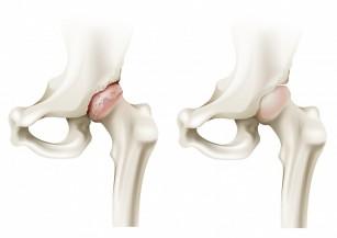 sufocând artroza șoldului cum să tratezi artrita pe călcâie
