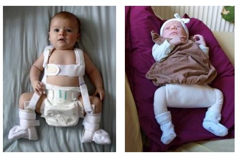 luxația congenitală a tratamentului articulației șoldului la adulți