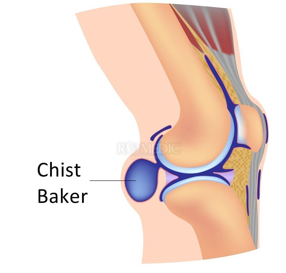 numele bolii articulației genunchiului
