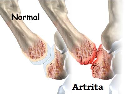 Artrita artroza degetului mare
