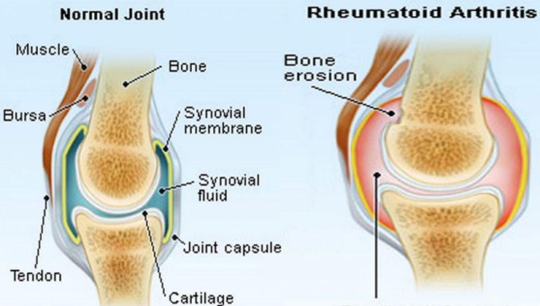 miere în tratamentul artrozei complex de glucozamină condroitină complex de glucosamină condroitină