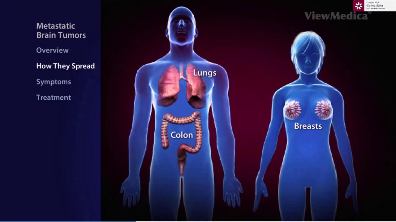 Cancerul de san cu metastaze la plamani - tratament