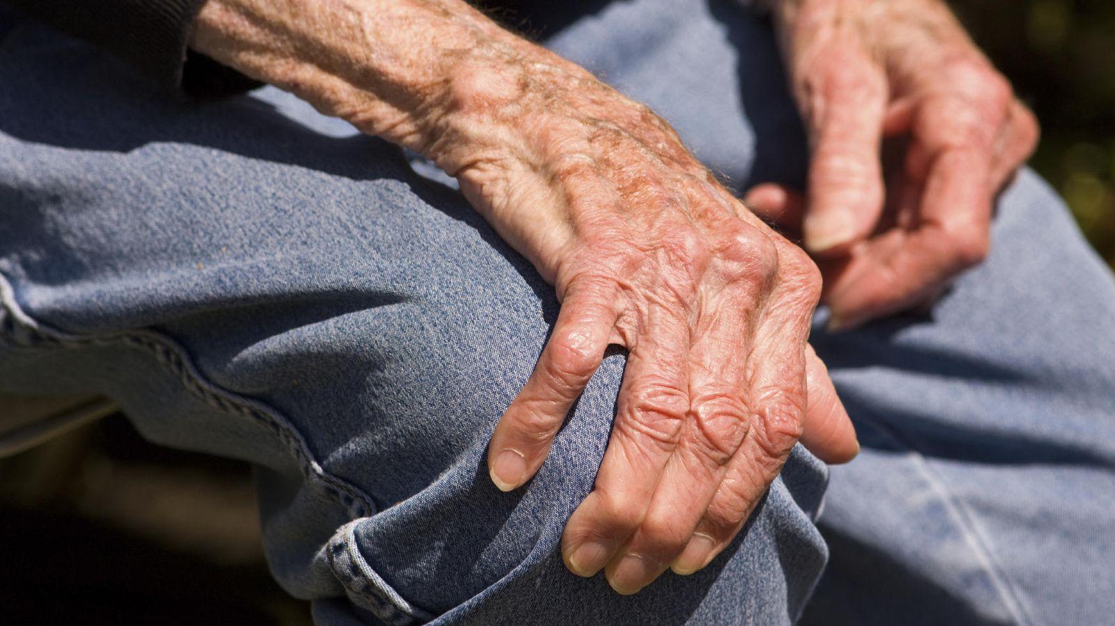 care a tratat articulațiile în recenzii de tanganzi cât timp este tratată artroza articulațiilor șoldului