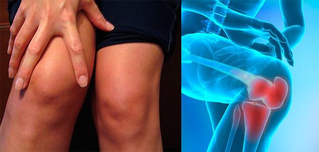 o lovitură pe articulație doare articulațiile dureroase ale genunchiului nu pot rula