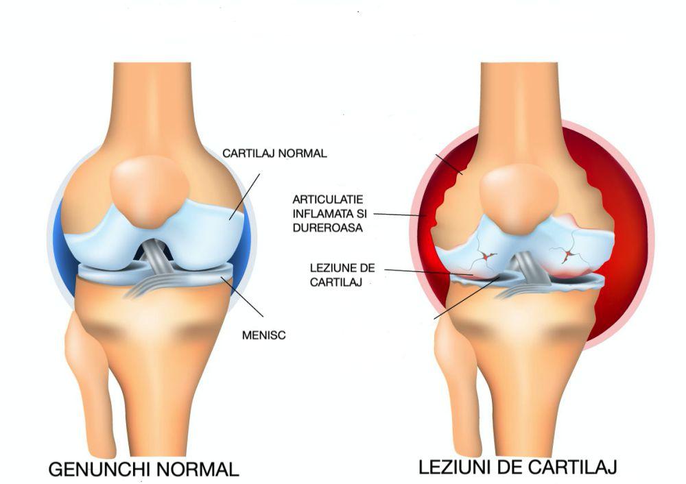 Tratarea leziunilor cartilajului genunchiului