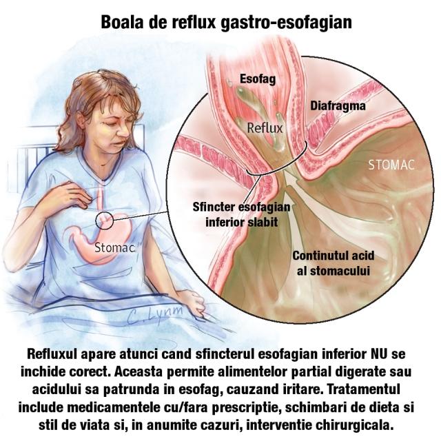 cum să tratezi articulațiile dacă stomacul doare