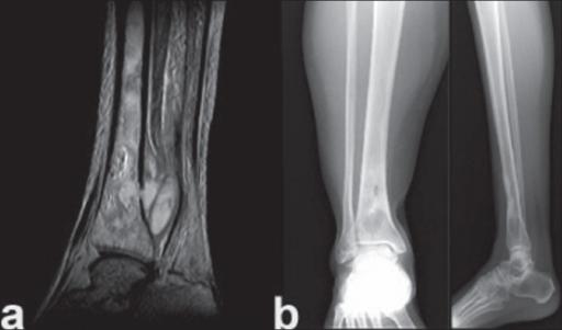 tratament articular osteomielită modificări ale cartilajului hialin cu artroza articulației genunchiului
