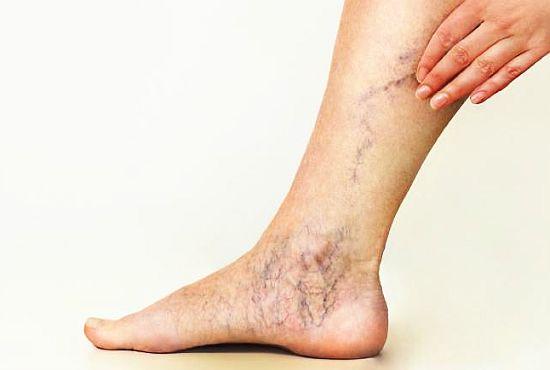 Vițeii și picioarele umflate Dureri de venă la genunchi - sfantipa.ro