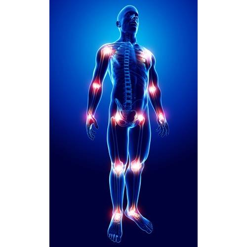 Ridicând durerile articulare. 7 cauze mai putin cunoscute ale durerilor articulare