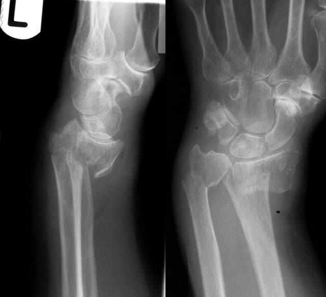 paracetamol cum se bea cu dureri articulare dureri de artrită în articulația șoldului
