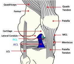ateroscleroza tratamentului articulațiilor șoldului boli ale articulațiilor mâinilor în mâini