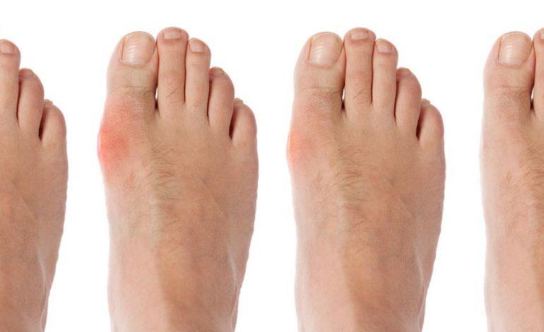metode de tratare a articulațiilor pe picioare