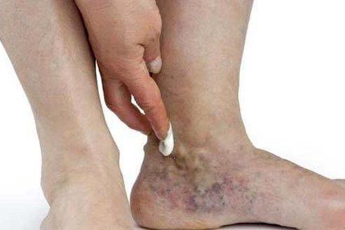 Articulația genunchiului creak