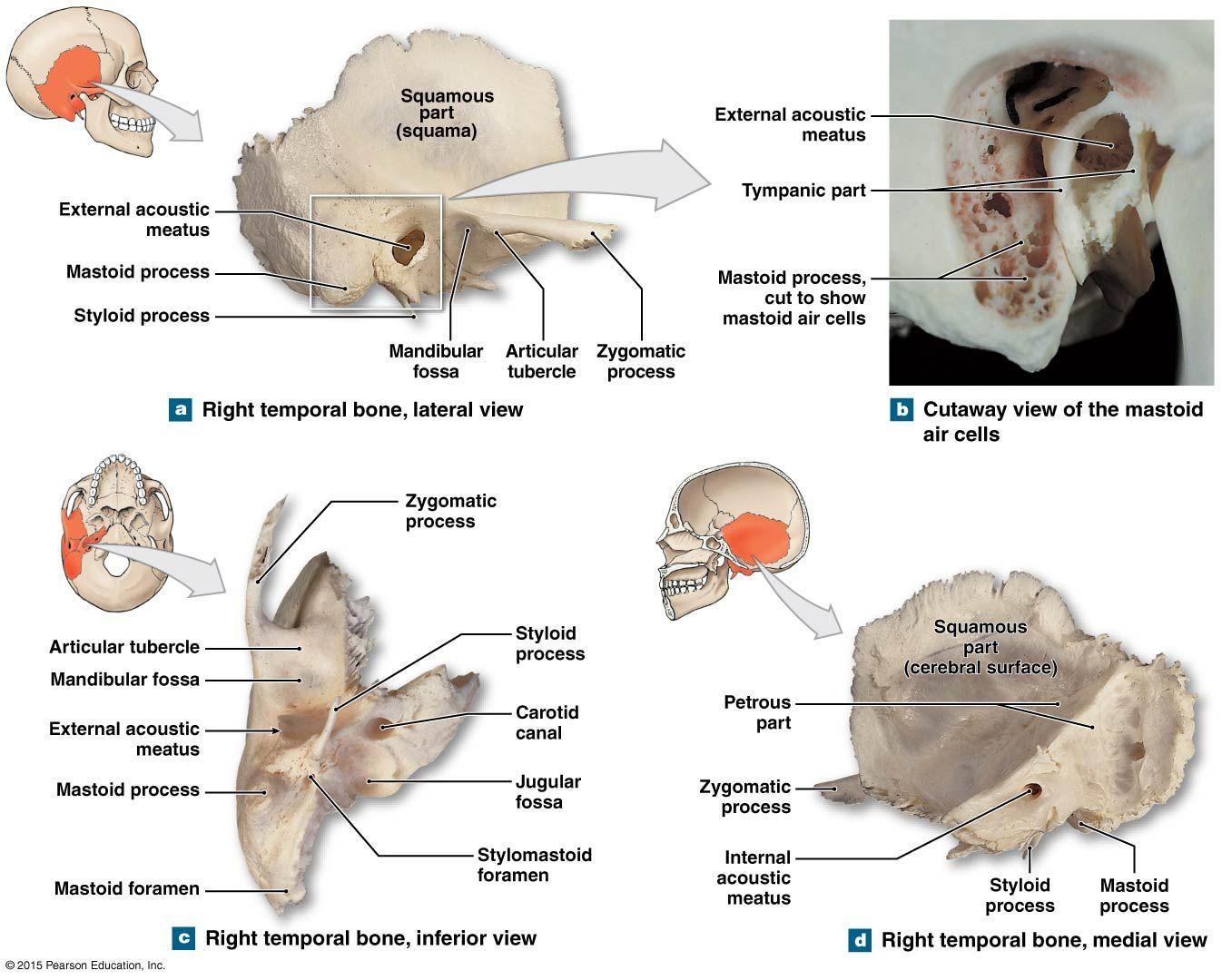 artroza și artrita și tratamentul acesteia recenzii de tratament cu artroza de șold 3