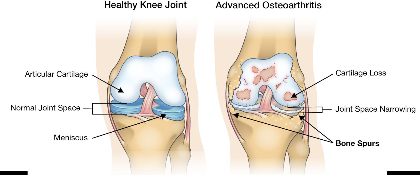 cum se tratează gonartroza genunchiului de gradul II durere dureroasă a articulației șoldului