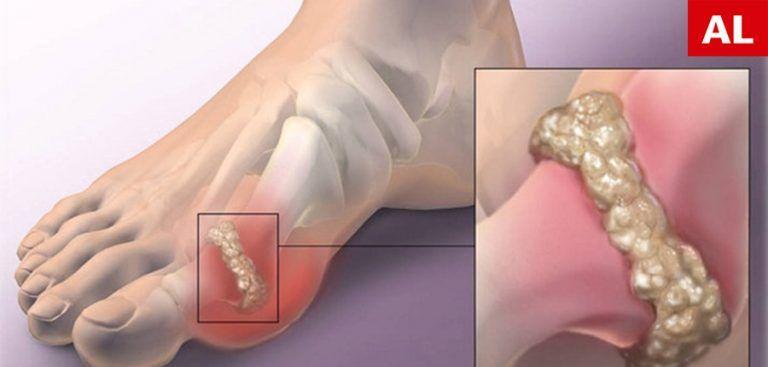 Este posibil să mergi cu dureri articulare recenzii de glucozamină lichidă cu condroitină