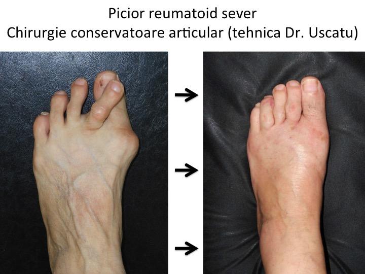 artrita reumatoidă degetele de la picioare cum se vindecă articulația