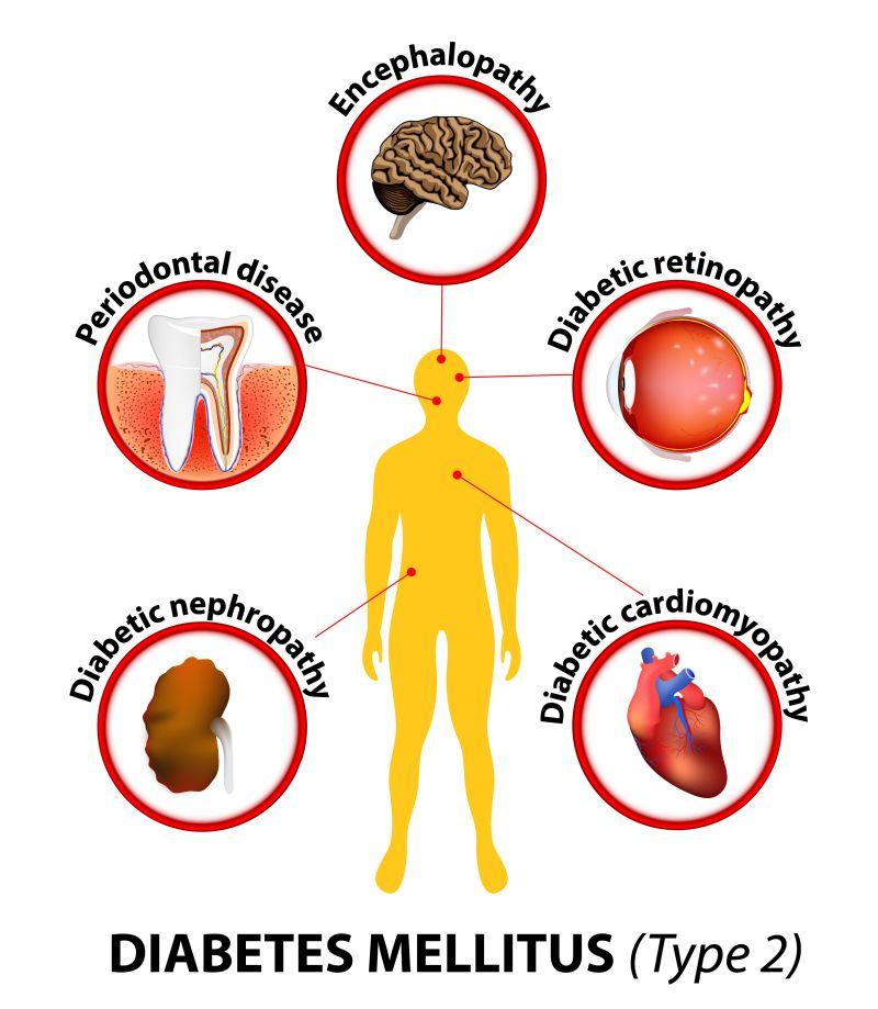 tratamentul simptomelor de artroză posttraumatică dureri articulare cu genunchiul cotului