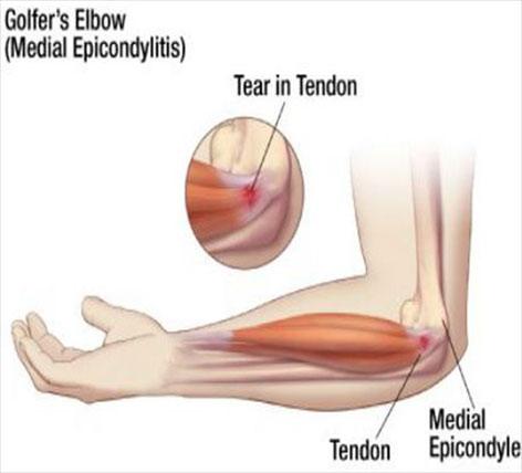 cum se tratează epicondilita ulnară a articulației cotului
