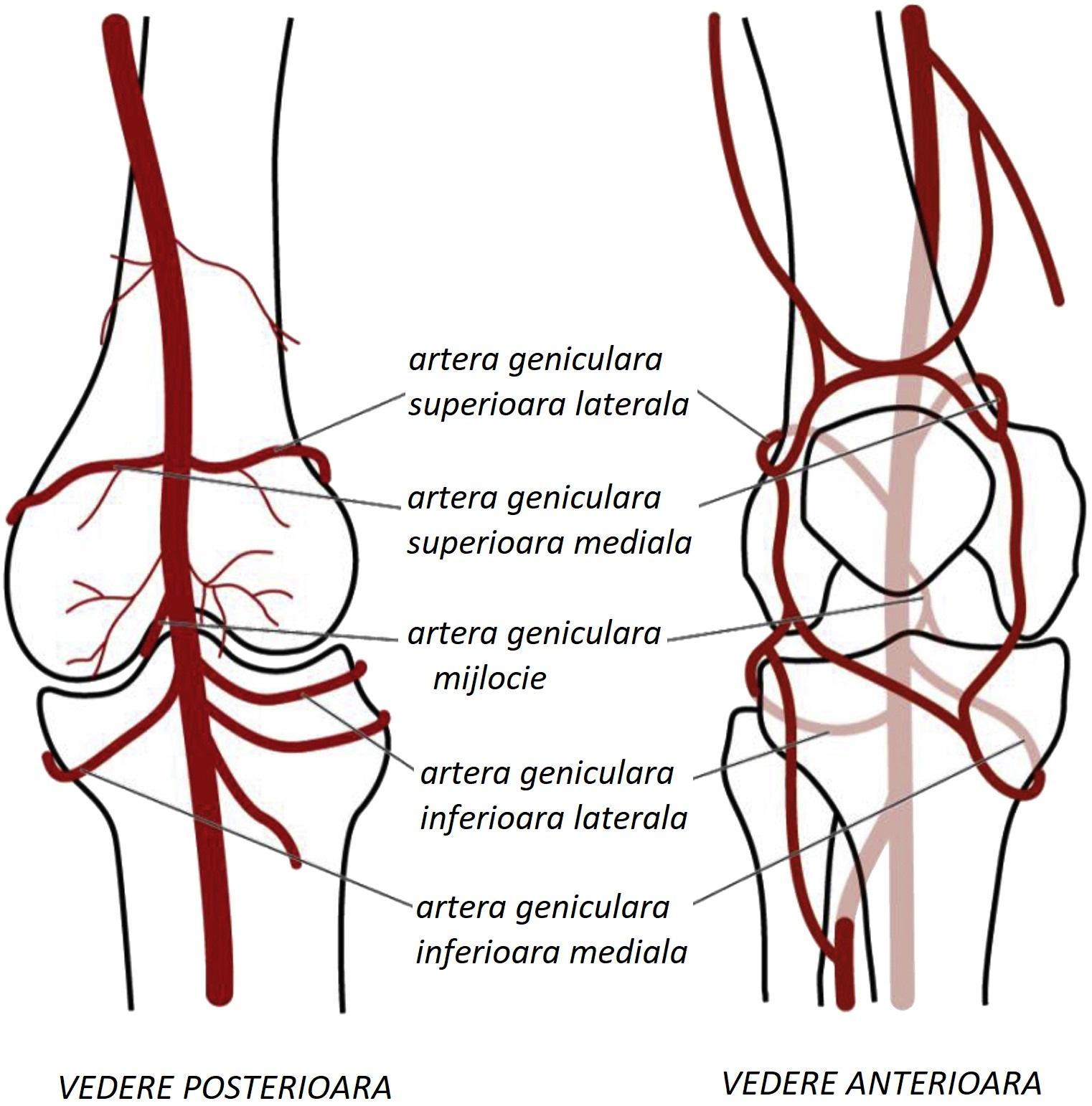 Artroza patelofemorală a genunchiului 2 grade