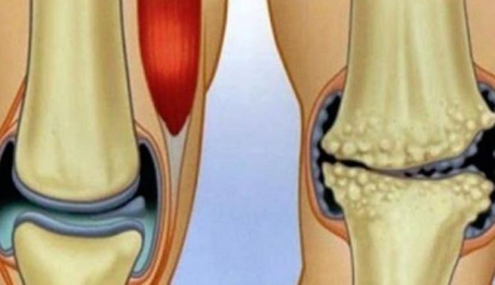 tratați articulațiile și genunchii
