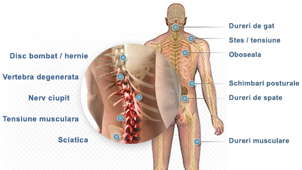 tratament cu ozonoterapie a artrozei