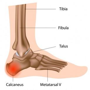 Artroza de 4 grade a articulației șoldului tratarea artrozei cu apă minerală