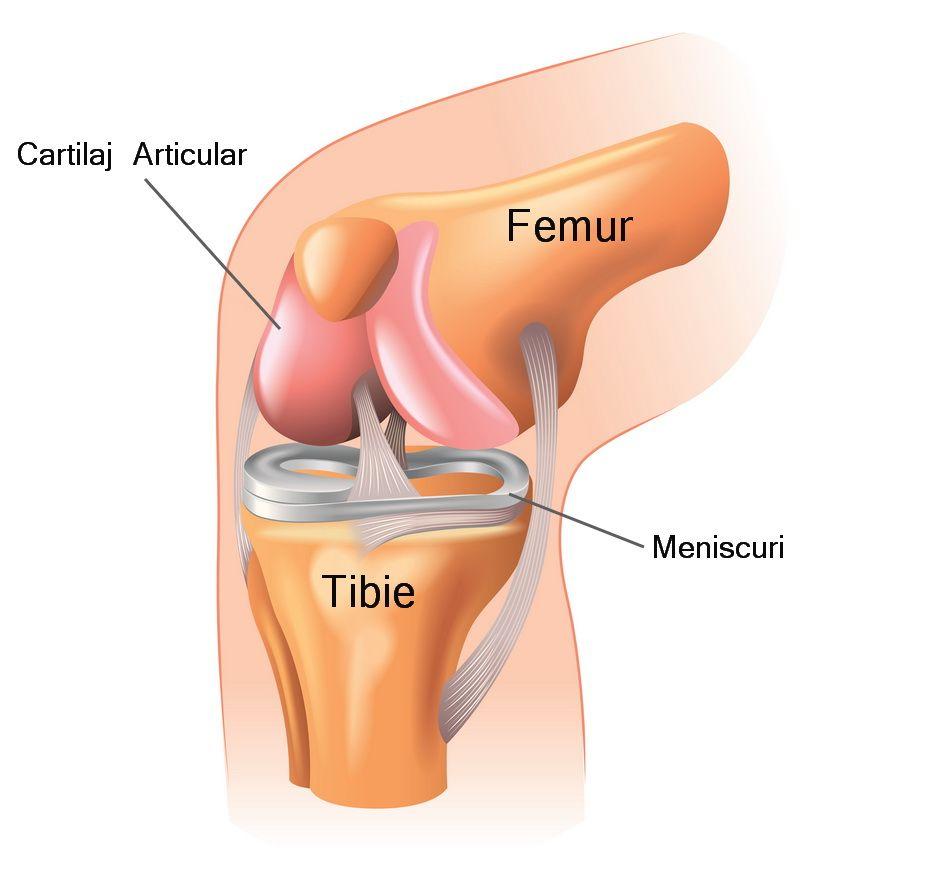 înlocuirea articulației genunchiului