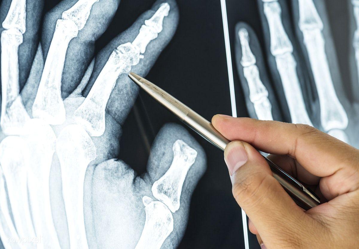 Boli degenerative-distrofice ale articulațiilor mari