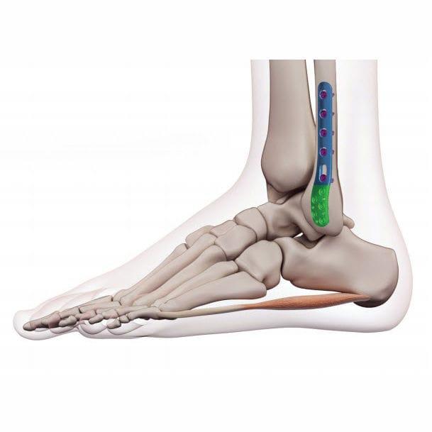 picioarele plate îmbinează articulația artroza articulațiilor l4-l5
