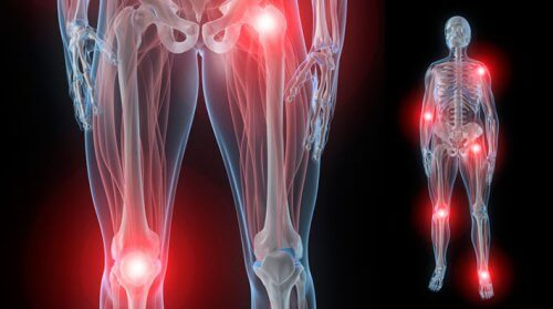 durere la apăsarea unei articulații a unei mâini creșterea glucozaminei și condroitinei