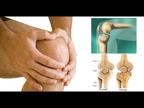 Condroprotectoare pentru artroza articulației genunchiului 2 generații