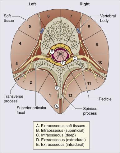 Dureri articulare cu insuficiență renală