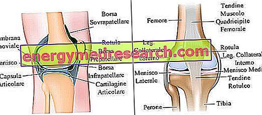Articulația genunchiului ce boli, Genunchi umflat