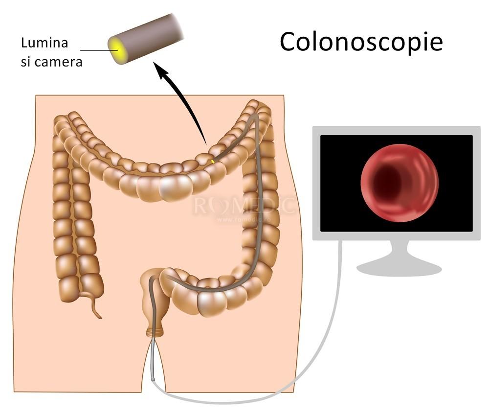 articulațiilor după o infecție intestinală ce umflare a articulației
